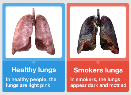 Experts say smokers are black on the inside